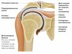 a vállízület keze artrózisa