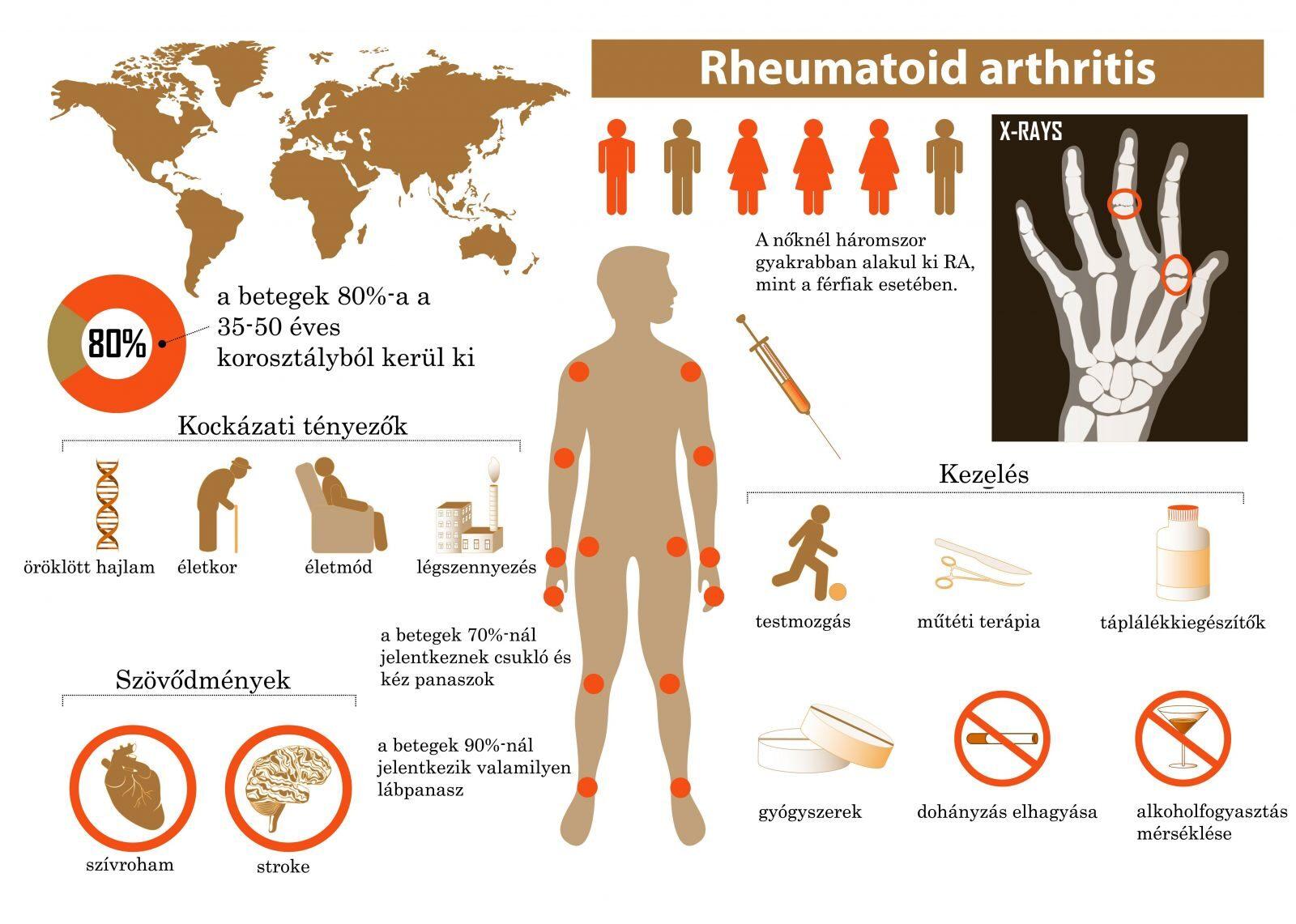 ízületi betegség és identitásuk hatékony gyógyszer az osteochondrozistól