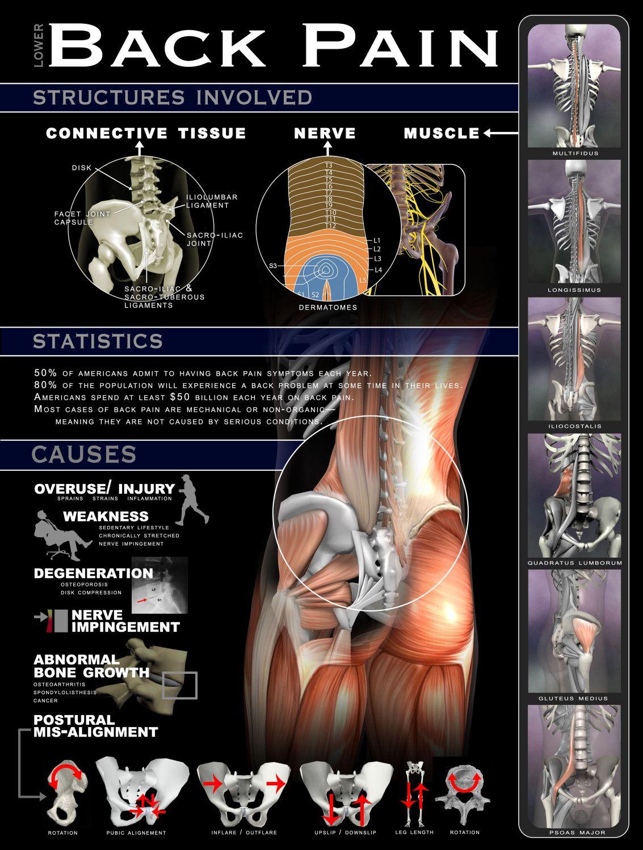 Lumbális osteochondrosis