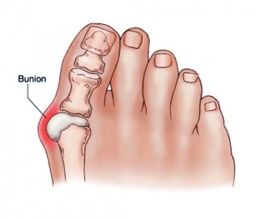 a nagy lábujj ízületének ízületi gyulladása