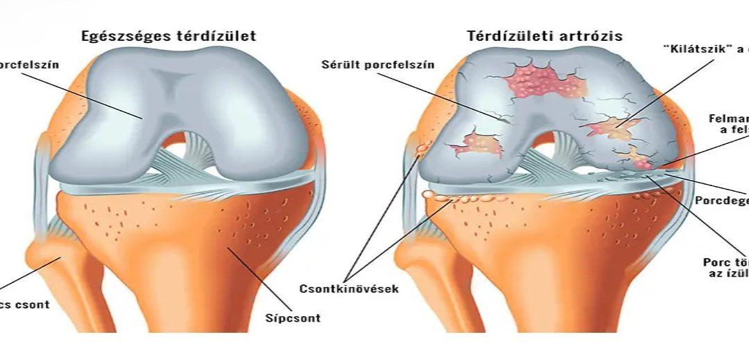 A térdfájdalom okai