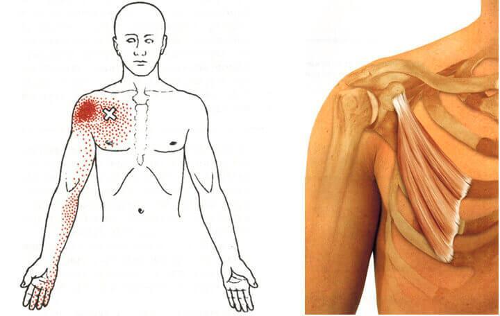 mi a térdízületek artrózisa 3 fokkal