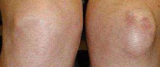 mi a térdízület artrózisa 3 fok)