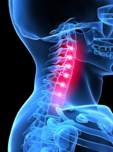 a nyaki gerinc osteokondrozisának leghatékonyabb gyógyszere
