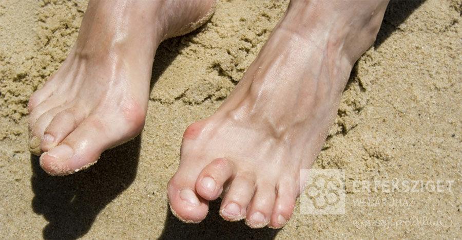 1 lábujj osteoarthritisének kezelése)