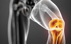 térd osteochondritis tünetei és kezelése ízületi fájdalom meteorológiai függősége