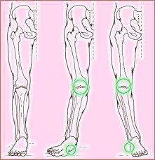 A lábak diszlokációjának tünetei és a sérülések kezelése