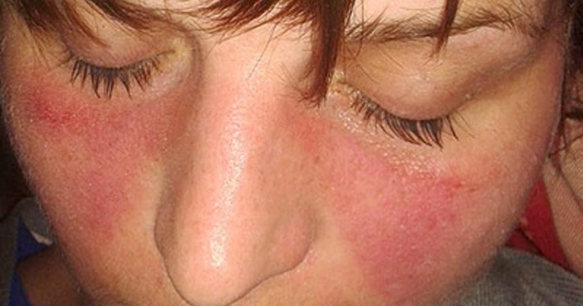 nem specifikus kötőszöveti betegség