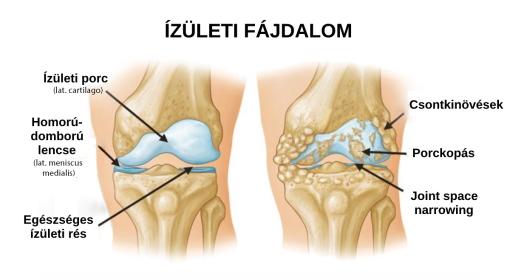 a gyógyszer az ízületi fájdalommal függ össze