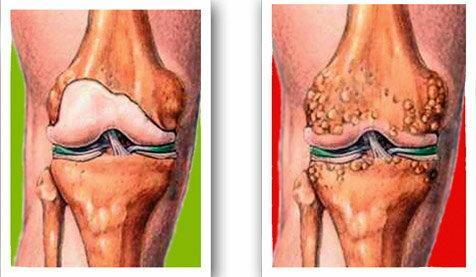 tegyen egy csoportot a térd artrózisához