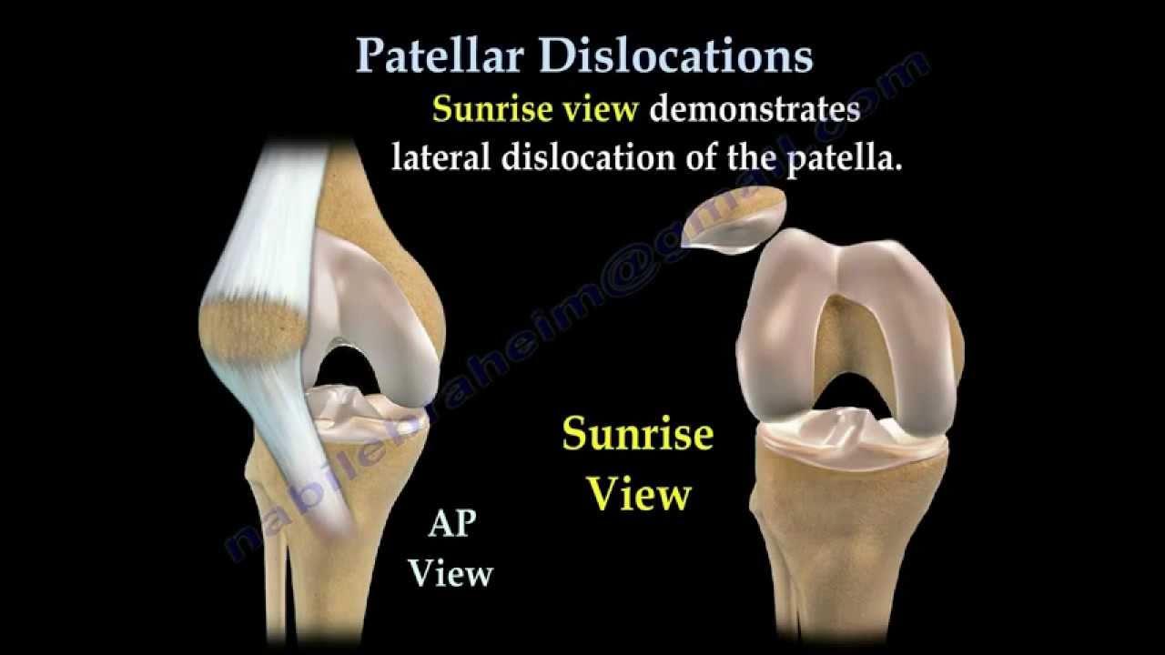 mi a patella arthritis)