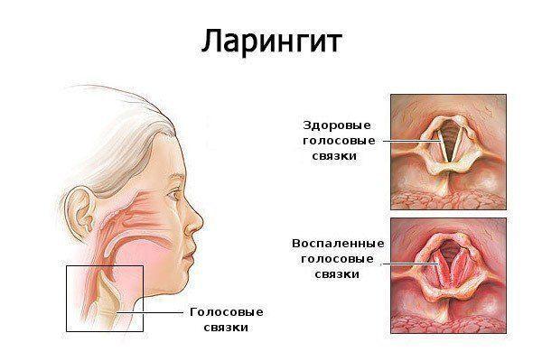 lidáz felhasználás ízületi fájdalmak esetén ízületi fájdalomkrém tart