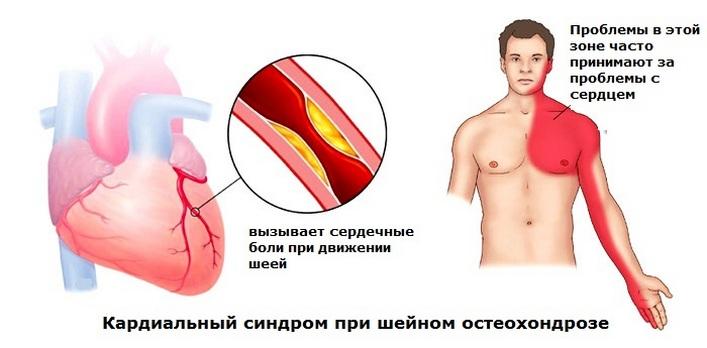 a nyaki osteochondrozis kezelésére szolgáló gyógyszerek komplexe