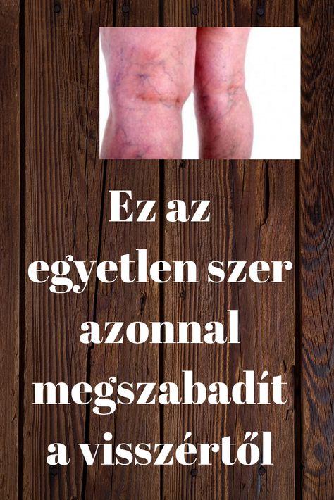 zeller ízületek ízületi kezelése)