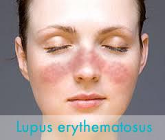 SLE - szisztémás lupus erythematosus - Immunközpont