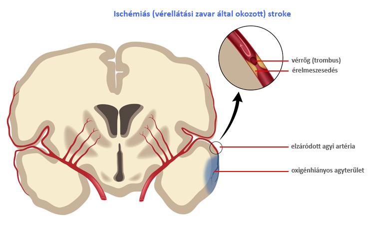 a tüdő fáj az ízületekről nyáktömlő gyulladás csípő tünetei
