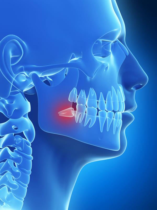Bölcsességfog okozta fájdalom, tünetek és húzás | Oral-B