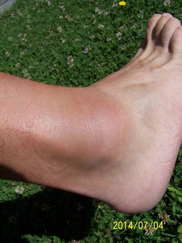 alkoholos tinktúrák artrózis kezelésére az alsó lábfájdalom a csípőpótlás után