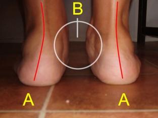 A bokafájdalom lehetséges okai - HáziPatika A lábak ízületei fáj a bokát