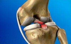 térdízületi fájdalom belülről)