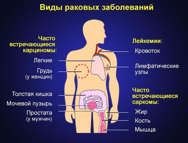 csípőízületek artrózisa 2 evőkanál)