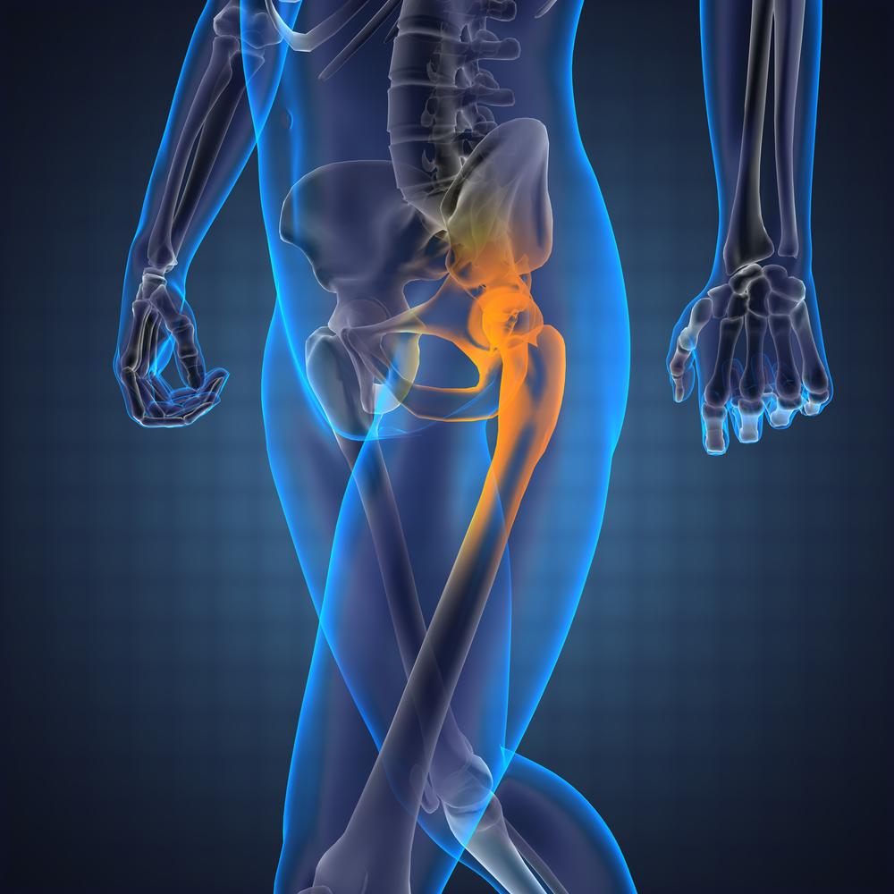 Csípőfájdalom – Csípőkopás   szoszszc.huán István ortopéd sebész praxisa