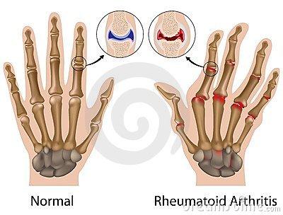 a jobb lábujj ízületének rheumatoid arthritis