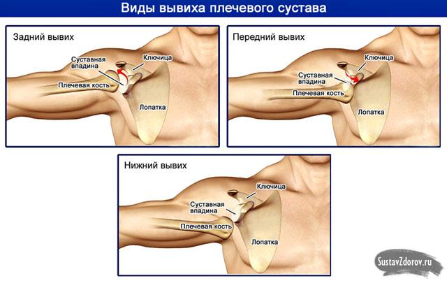 a vállízületek betegségei és besorolása)