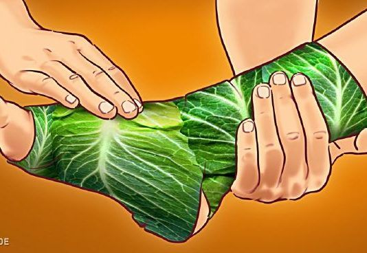 Ezek a legjobb gyógynövények ízületi fájdalom, gyulladás és visszér ellen