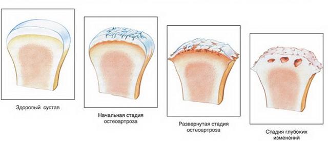 edzőkerékpár ízületi gyulladás esetén