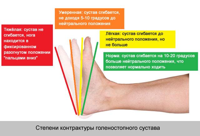 a térd ízülete 1-2 fok a kézízületek ízületi gyulladás tünetei