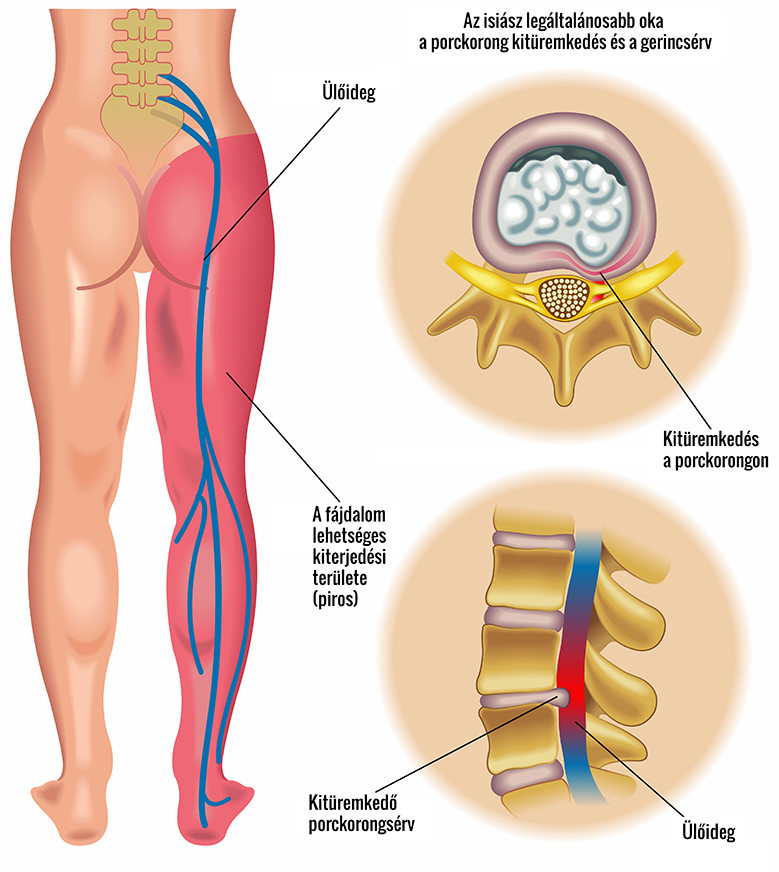 deformált vállízület kezelése szalagkészülék ízületi fájdalom