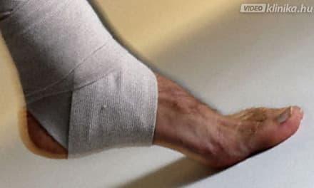 ízületi fájdalom sportolók kezelése