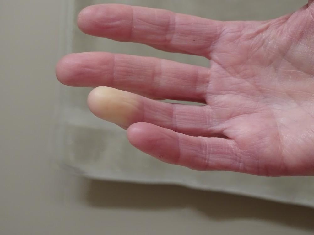 az ujjak falának ízületi kezelése)