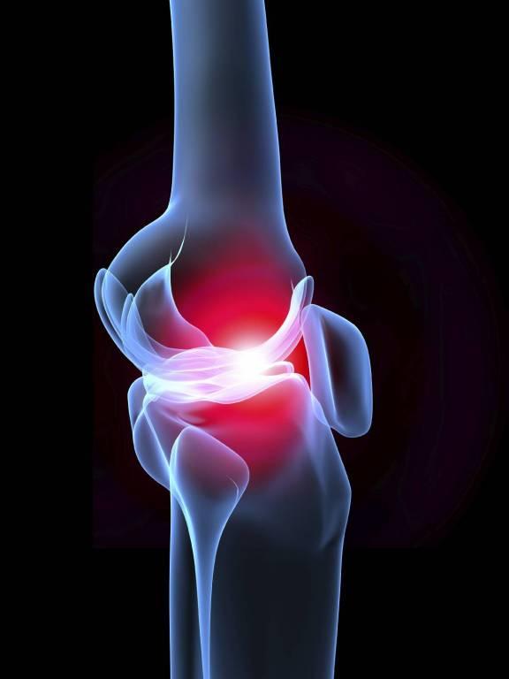 ízületi fájdalom, hogyan lehet megelőzni)