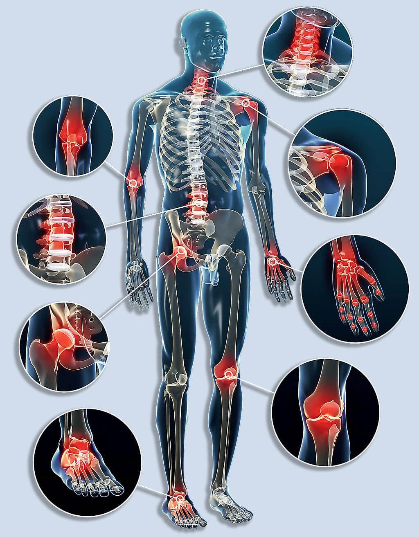 sanya ízületi kezelés a reuma tünetei