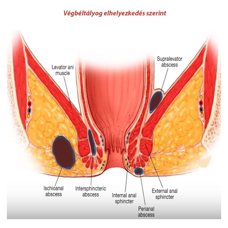 csípő-fistula kezelés)