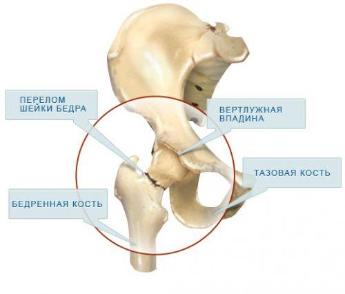 a csípőízület vertikális bursitisz kezelése)