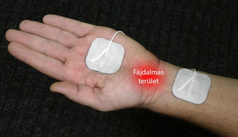 kvarclámpák artrózis kezelésére)