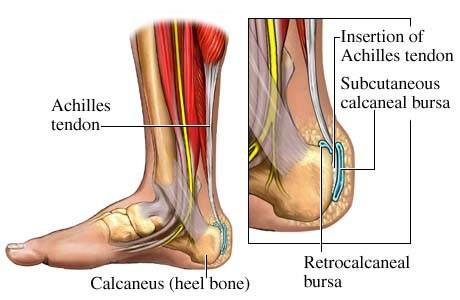 Achilles-ín gyulladás – Okok, tünetek és kezelés