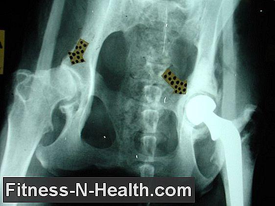 csípőgyulladás következményei