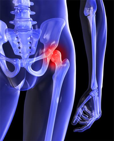 csípőfájdalom jobb első oldalán)