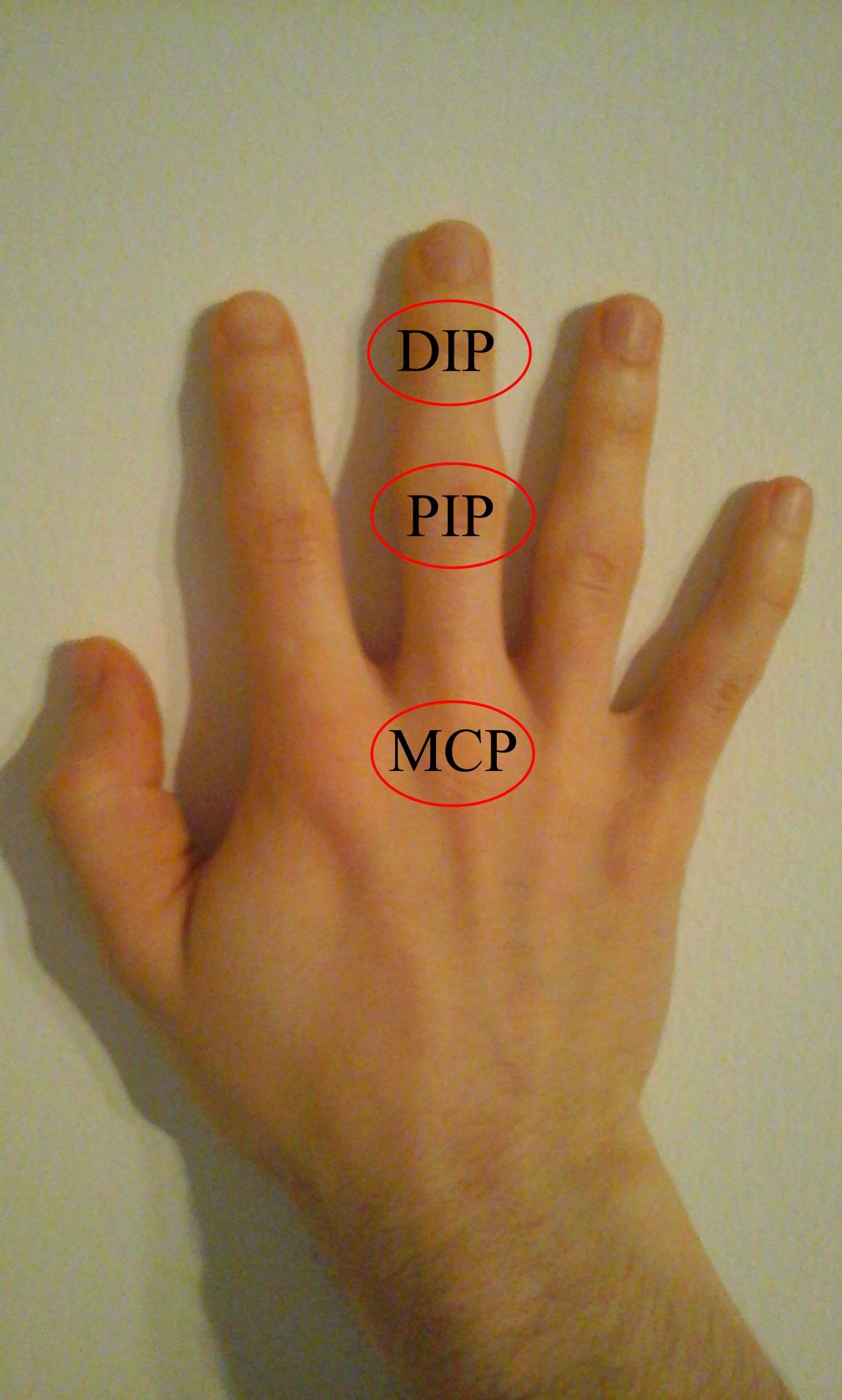 az ujjak duzzanata és ízületi fájdalmak)