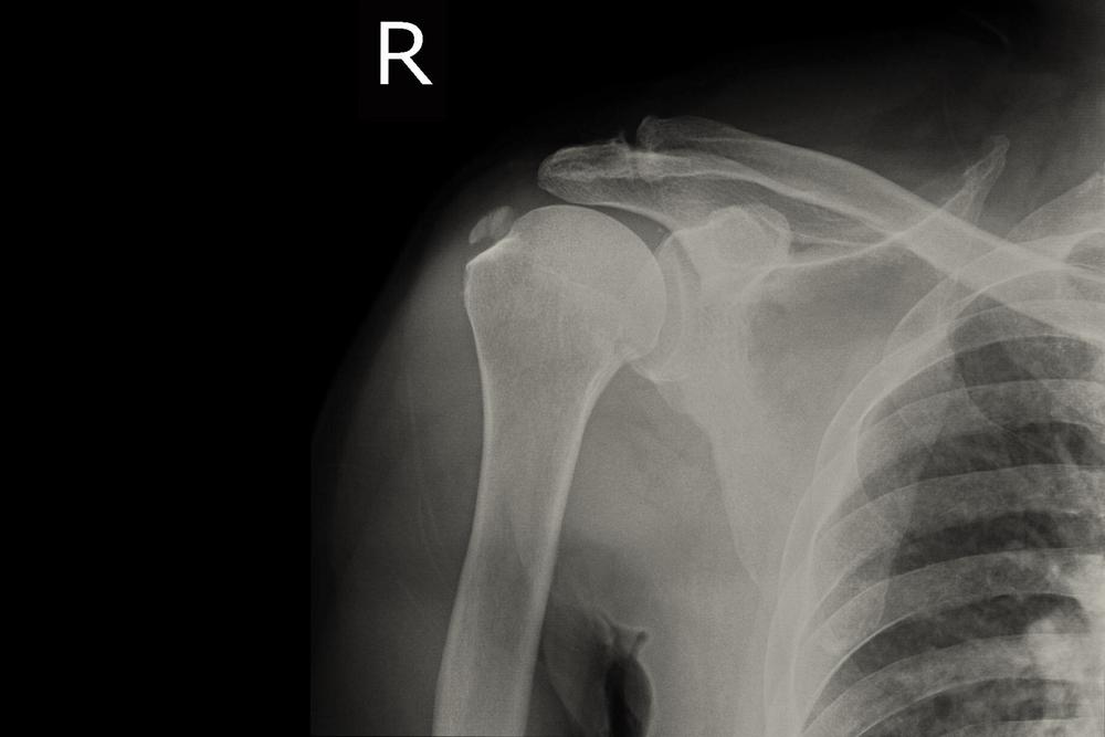 az artrózis kezelésének típusai)