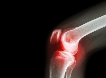 ha a térdízület lába fáj arthrosis kezelés litvánia
