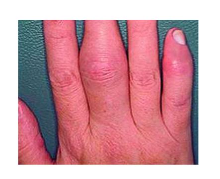 ízületi gyulladásos ujjízületi kezelés