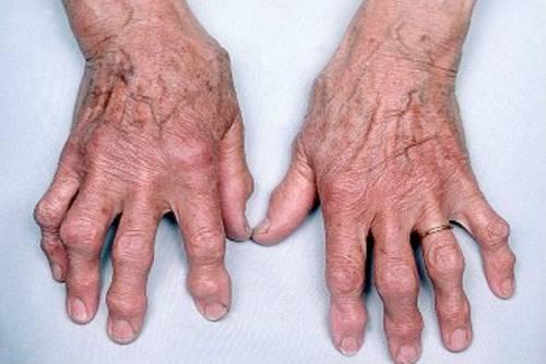 ujjak ízületeinek deformáló artrózisa)