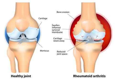 fájdalom a csípőben fekve boka tendinitis okoz