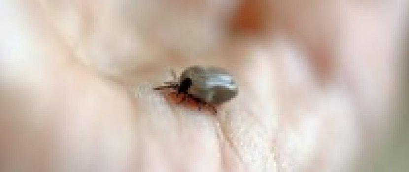 Vándorló izületi gyulladás - Mozgásszervi megbetegedések
