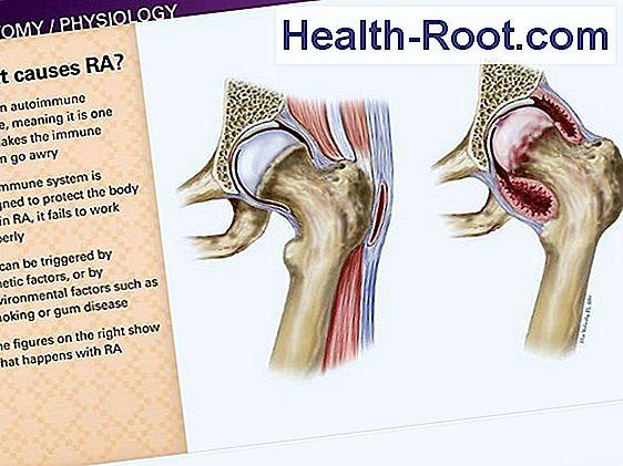 ízületi változások a rheumatoid arthritisben)